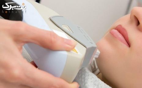لیزر موهای زائد کل بدن در مطب دکتر بخشی