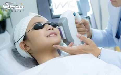 لیزر موهای زائد زیربغل در مطب دکتر شریفی آل آقا