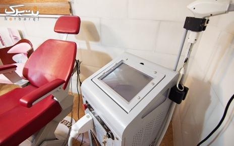 لیزر موهای زائد ناحیه زیر بغل در مطب دکتر احمدیان