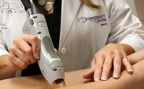 لیزر موهای زائد نواحی بدن در مطب دکتر فولادی