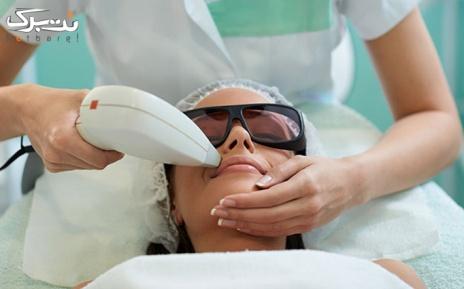 لیزر موهای زائد زیر بغل در مطب دکتر بلورچی