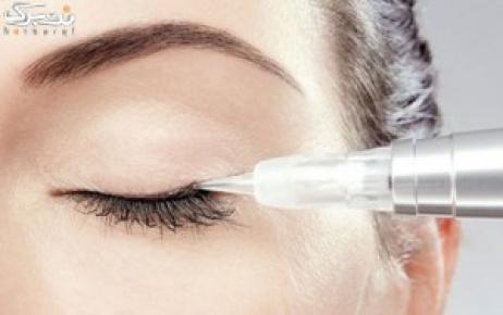 میکروپیگمنتیشن خط چشم در آرایشگاه راز مهتاب