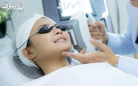 لیزر موهای زائد زیر بغل در مطب دکتر شریفی آل آقا