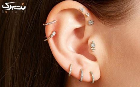 هزینه دستمزد پیرسینگ گوش توسط دکتر مسیب زاده