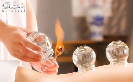 بادکش درمانی گرم در مرکز ماساژ و حجامت آنتیک