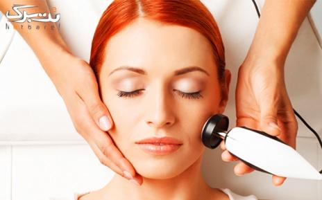 لیزر موهای زائد نواحی بدن در مطب دکتر اطمینان