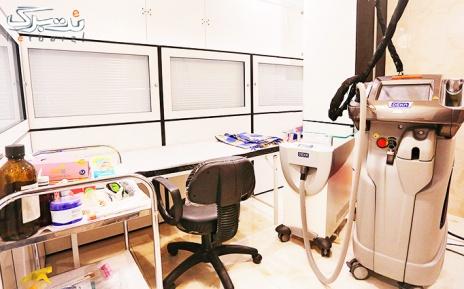 لیزر موهای زائد زیر بغل در مطب دکتر حبیب زاده