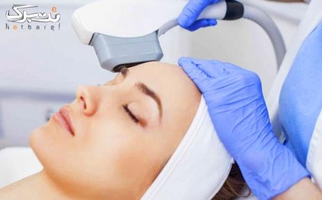 لیزر موهای زائد زیر بغل در مطب دکتر موسوی