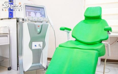 لیزر دایود ناحیه زیر بغل در مطب دکتر متقی