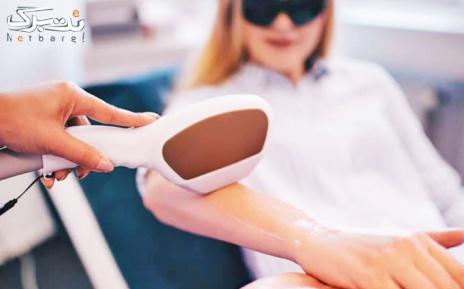 لیزر موهای زائد نواحی بدن در مطب دکتر عفیفه پور