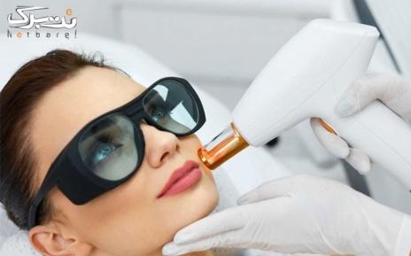 لیزر کلاریتی ویژه فول بادی در مطب دکتر نسیم نوروزی