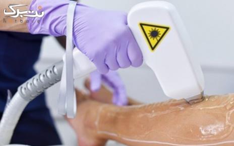لیزر الکساندرایت زیر بغل در مطب دکتر دارابی