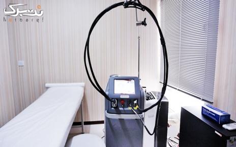 لیزر الکساندرایت نواحی بدن در مطب دکتر فاضل مرام