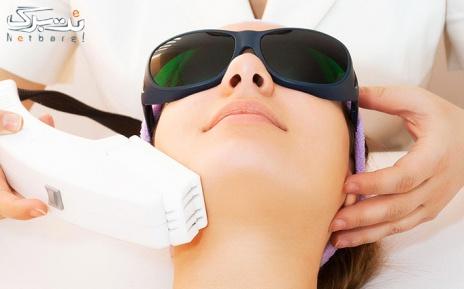 لیزر موهای زائد زیر بغل در درمانگاه پوست و مو دریا