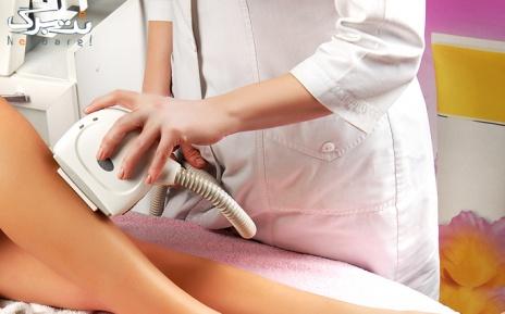 لیزر دایود ویژه نواحی بدن در مطب دکتر صدر ممتاز