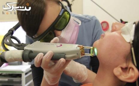 لیزر موهای زائد نواحی بدن در مطب دکتر رضائی