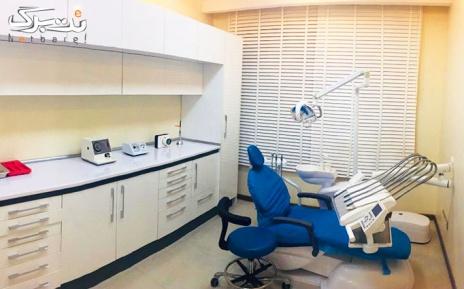 بلیچینگ هر فک در مطب دکتر خاک زاد