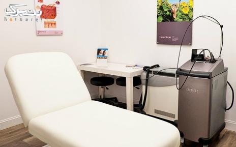 لیزر موهای زائد زیربغل در مطب دکتر محمد یوسفی