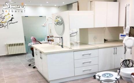 جرم گیری همراه با بروساژ در مرکز دندانپزشکی شمس