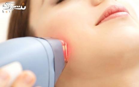 لیزر زیر بغل در کلینیک پوست و مو دکتر قنبریان