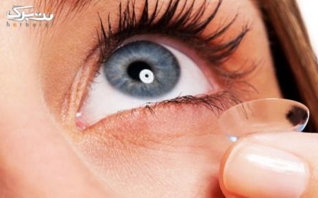 پکیج 2 : لنز طبی ساده