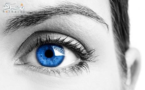 پکیج 3 : لنز طبی رنگی