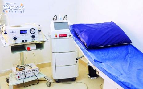 برداشتن خال 2 تا 5 میلی متر توسط دکتر زمانی نیا