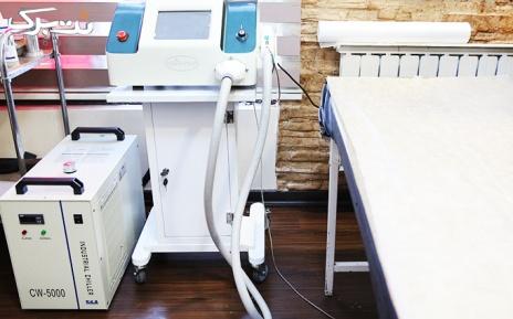 برداشتن خال های کوچک در مطب خانم دکتر عظیمی