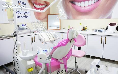 جرمگیری دندان در مطب آقای ابوالحسنی