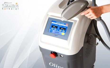 لیزر با دستگاه دایود olive در مطب دکتر امینی