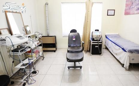 خالبرداری تا 5 میلی متر در مطب پزشک