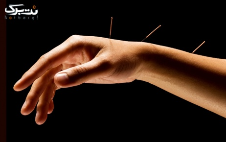 طب سوزنی جهت از بین بردن استرس در مطب دکتر خسروی
