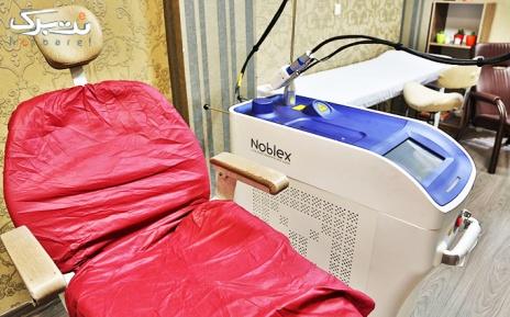 لیزر ناحیه زیر بغل در مطب خانم دکتر پوراکبری