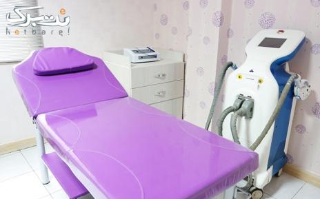 لیزر ناحیه زیربغل در مطب دکتر تبسم