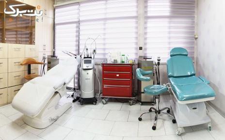 لیزر لیزر ناحیه زیربغل در مطب دکتر مظلومی