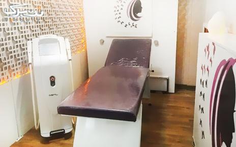 لیزر shr در مطب دکتر جلالی
