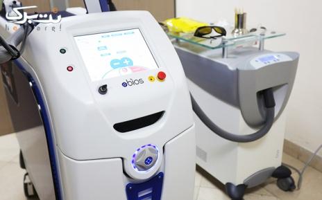 لیزر ناحیه زیربغل با دستگاه الکساندرایت در مطب دکترداوودی