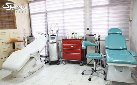 تزریق ژل هایومکس در مطب دکتر مظلومی