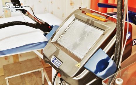 لیزر زیربغل با دستگاه الکس در مطب  دکتر غلامی