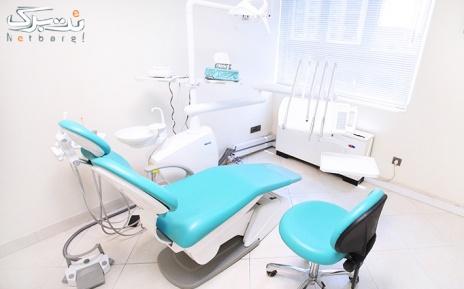 پرکردن سطحی دندان توسط خانم دکتر کشتکاران