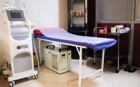 لیزر الکساندرایت matrix ویژه ناحیه زیر بغل در مطب دکتر تازیک
