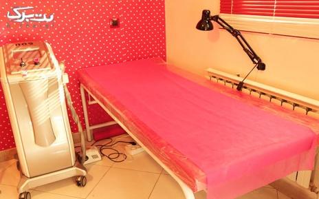 لیزر دایود ناحیه زیربغل در مطب خانم دکتر کمالی