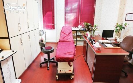 لیزر ناحیه زیربغل در مطب خانم دکتر عسگری