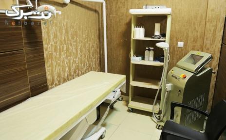 لیزر ناحیه زیر بغل در مطب دکتر طباطبایی