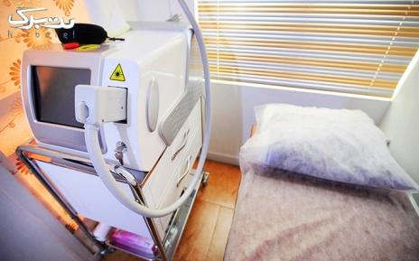 لیزر زیربغل در مطب دکتر میر افشاریه