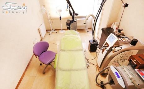 لیزر ناحیه ای در مطب دکتر غیبی