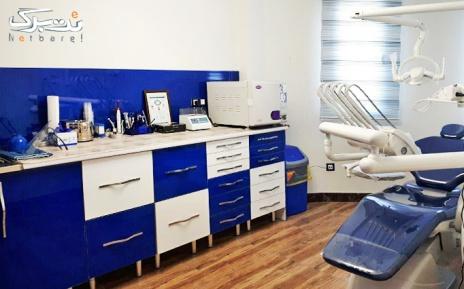 پکیج 1: فلورایدتراپی در مطب دکتر منادی