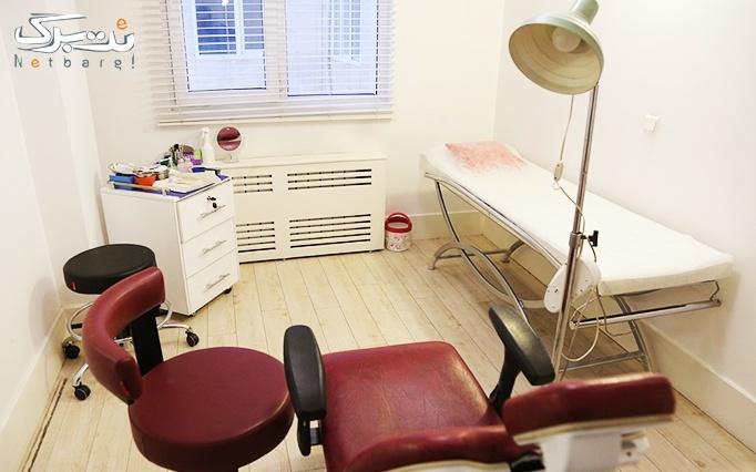 لیزر IPL در مطب دکتر بروجردی