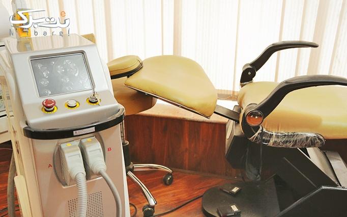 لیزر موهای زائد با دستگاه دایود در مطب دکتر نیازی