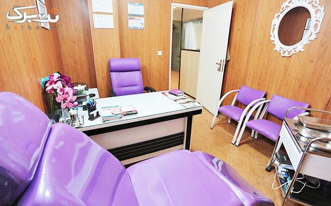 دستمزد تزریق بوتاکس دیسپورت در مطب دکتر نجفی
